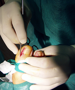 Cirugia ungueal