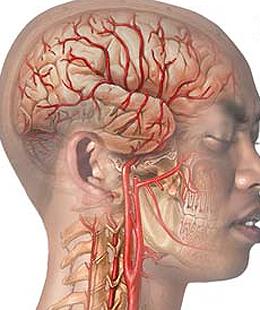 Dolor de cabeza en el lado izquierdo de la cabeza detrás del ojo y la sien